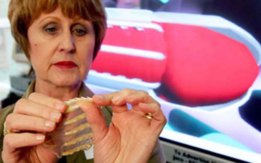 African Doctor Invents Female Condom with 'Teeth' to Fight Sex Assault , south africa, sonnet ehlers, rape, anti rape, anti assault, sexual assault, rape axe, rape-axe, humanitarian design, women's safety