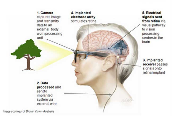 Brain diagram eye search for wiring diagrams bionic eye vision australia diagram inhabitat green design rh inhabitat com brain diagram ap psych brain diagram interactive ccuart Choice Image
