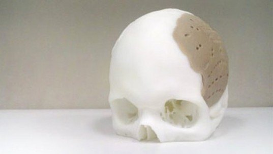 oxford performance materials, prosthetic, skull, 3d printer, technology, additive manufacturing, pekk, replacement