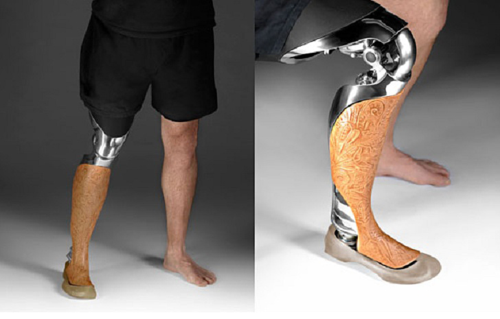 These Beautiful Customized 3D-Printed Prosthetic Legs Are Made to Be Seen