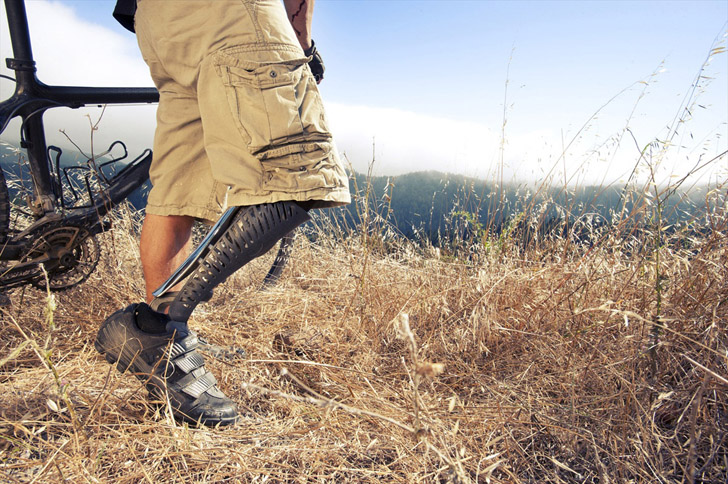 Beautiful Customized DPrinted Prosthetic Legs Are Made To Be - Designer creates see through 3d printed prosthetics made from titanium