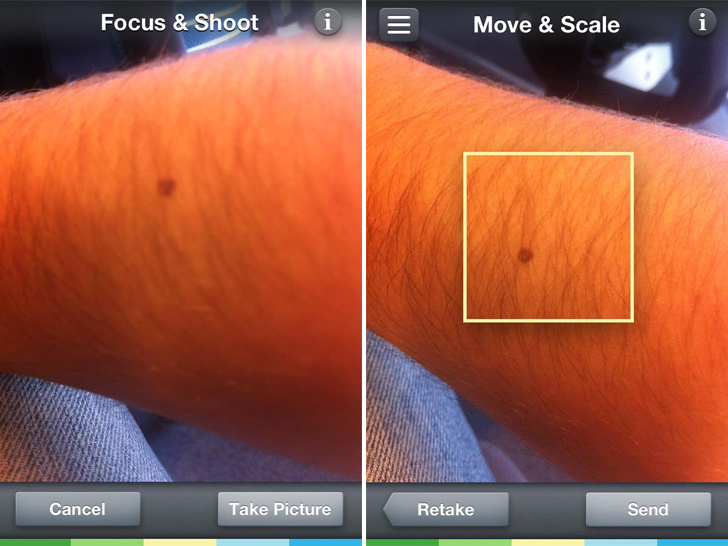 Skinvision App Turns Your Smartphone Into A Skin Cancer Scanner
