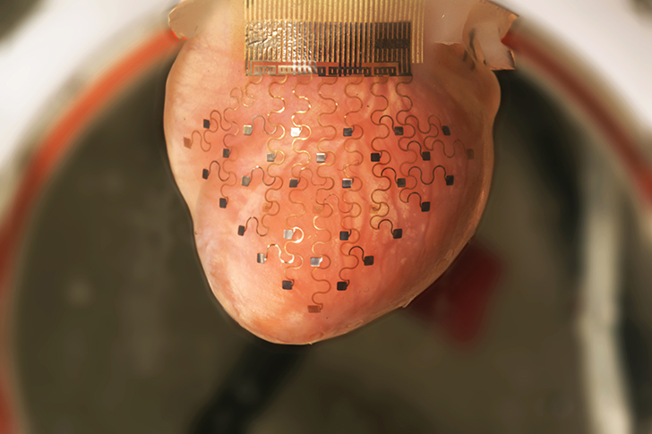 Next Generation Membrane Pacemakers Wrap the Heart Like an Electronic Glove