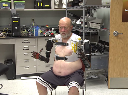 prosthetic limbs, prosthetic technology, double amputee mind control, mind control limbs, mind control prosthetics, Leslie Baugh, Leslie Baugh prosthesis, double amputee technology, Courtney Moran, neural implants, amputee neural implants, artificial limbs, artificial limb technology