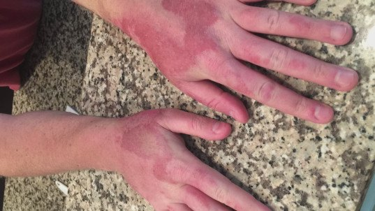 florida man, lime disease, margarita dermatitis, second degree burns from lime juice, citric acid and sun, citric acid sun exposure, health