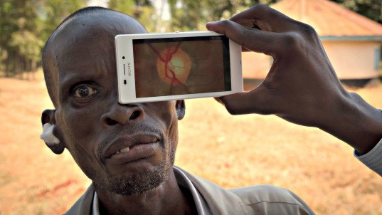 Peek Retina could reduce global blindness by 80%