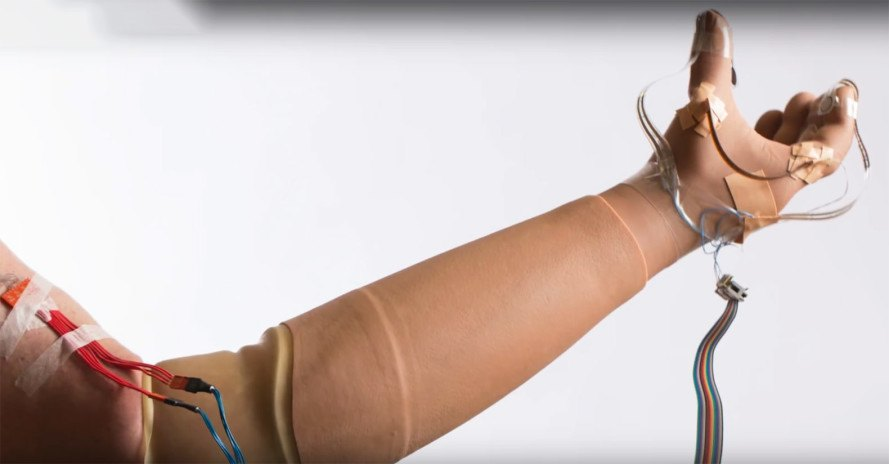 prosthetic hand, prosthetic innovation, amputee technology, prosthetics, prosthetic arm touch