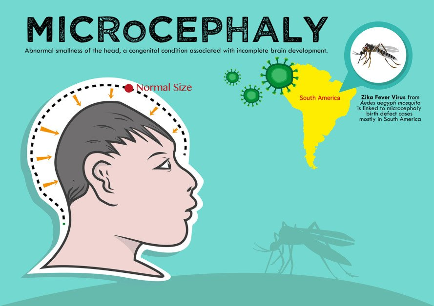 WHO, public health emergency Zika, Zika Virus, mosquito-borne virus, WHO Director-General Dr Margaret Chan, microcephaly, virus shrinking babies brains, zika virus microcephaly, latin america zika, Caribbean zika virus, Bill McKibben dystopian future