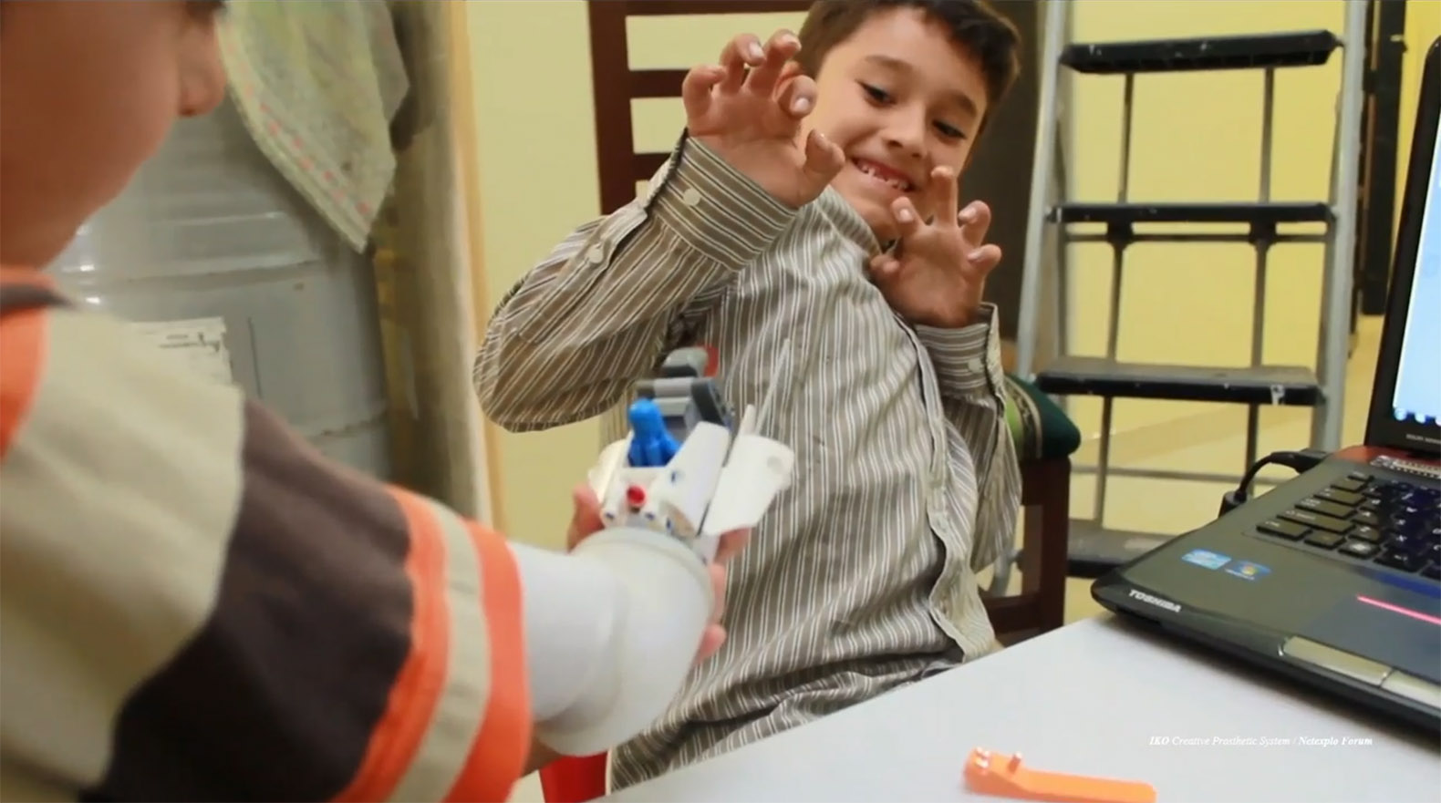 LEGO arm that lets kids customize their own prosthetics wins