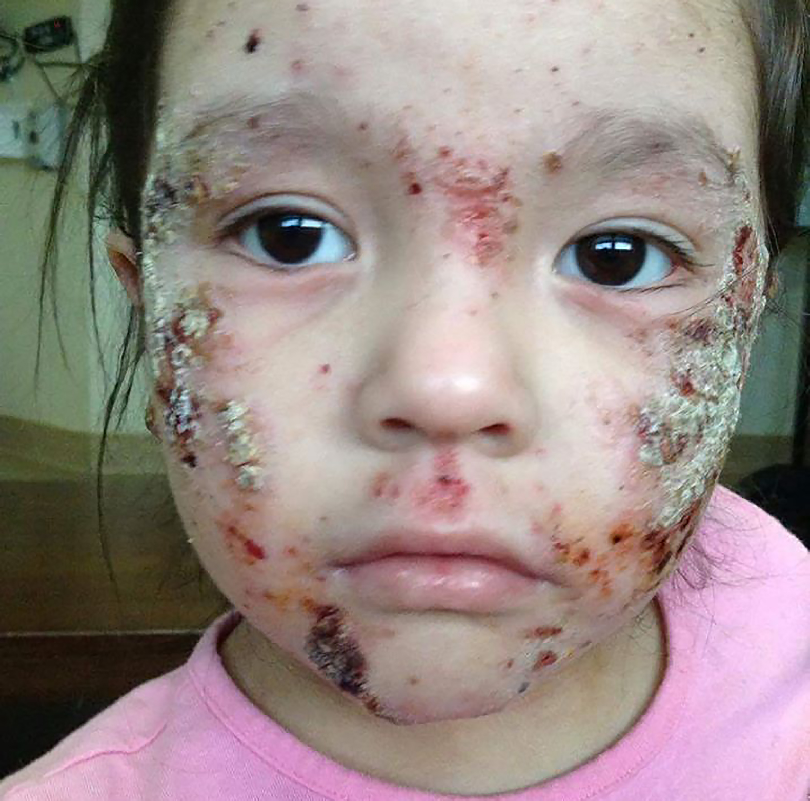Kashechewan-children-rashes-face.jpg