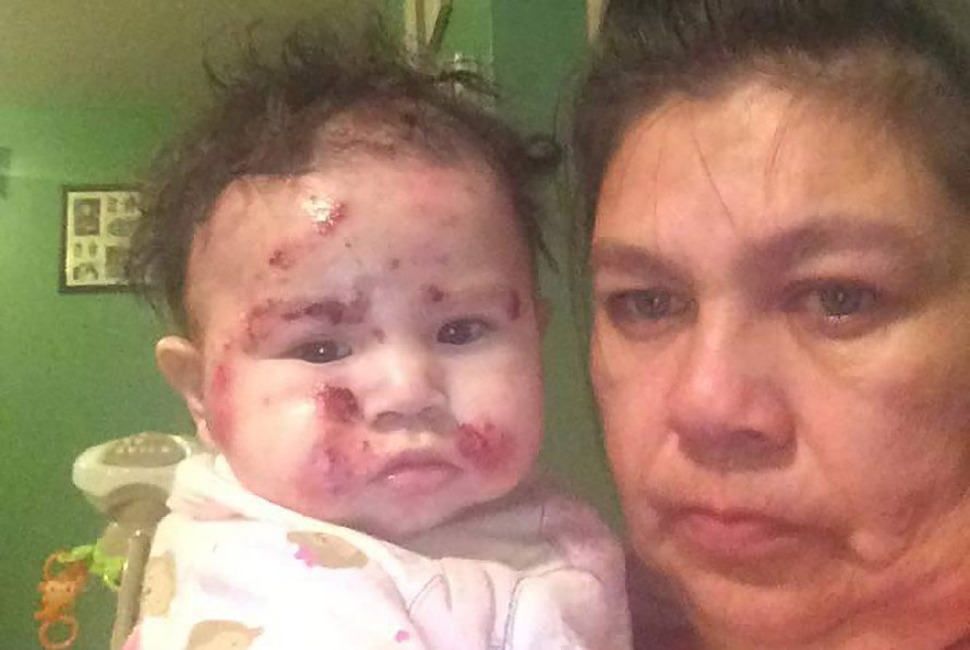 Kashechewan, First Nation, Canada, aboriginal peoples, indigenous peoples, health care, health crisis, rash