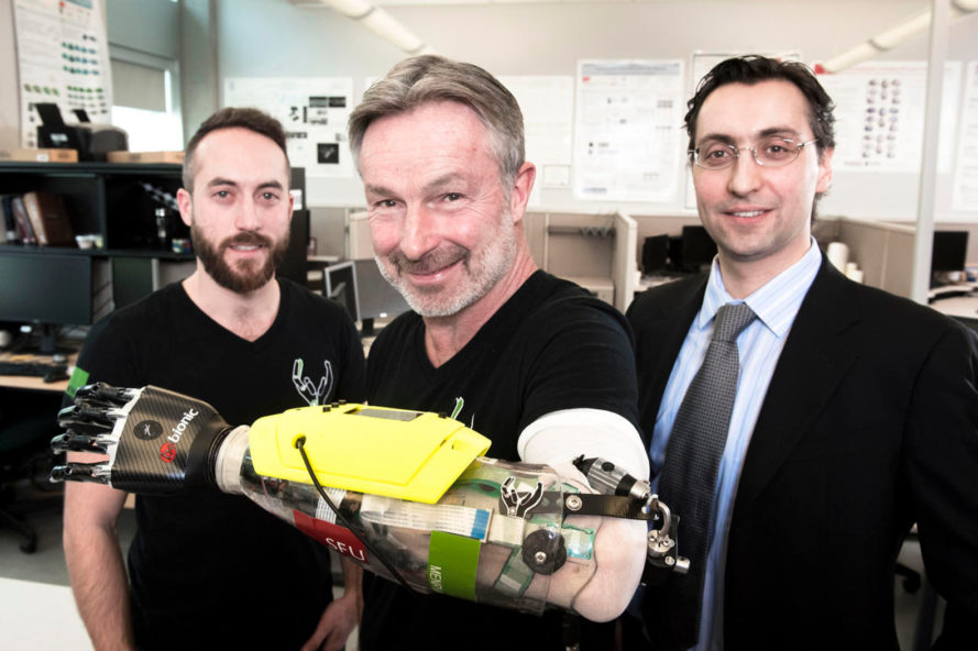 bionic hand, bionic prosthetic, prosthetic limbs, Simon Fraser University, canada, danny letain, amputees