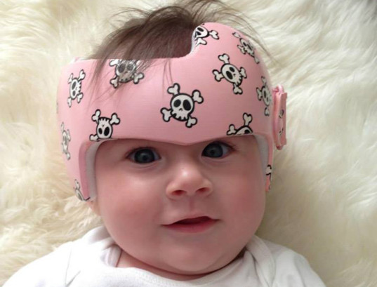 green design, eco design, sustainable design,Paula Strawn, flat-head syndrome, baby helmet, plagiocephaly