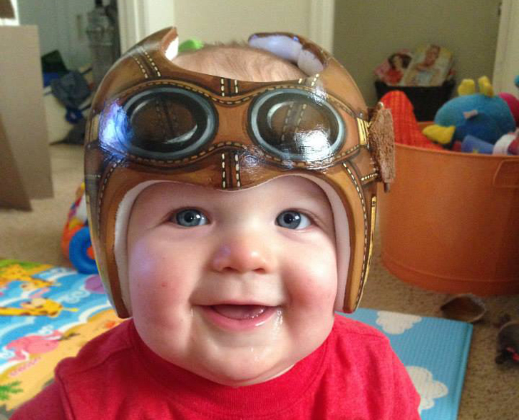 Adorably Painted Head Shaping Baby Helmets Put Style In