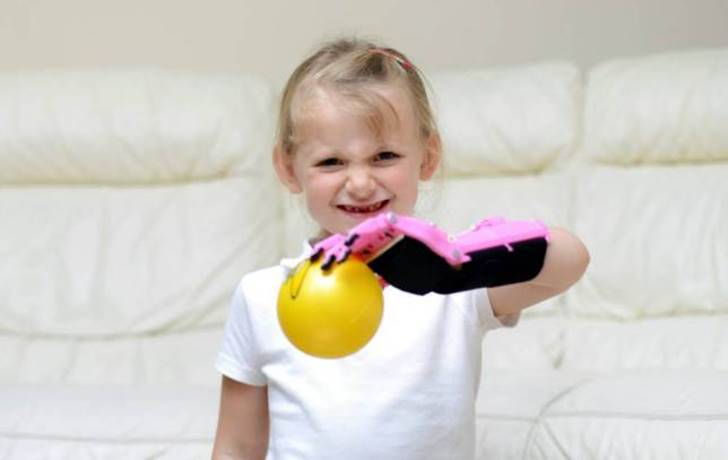 Five Year-Old Girl is First Child in the UK to Receive a Prosthetic Hand Made with 3D Printing Technology